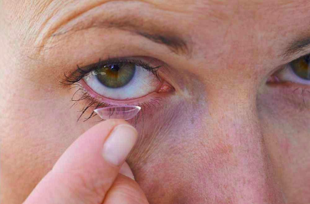kitschenberg-kontaktlinse-einsetzen